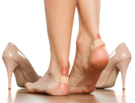 7 Home remedies for blisters on legs