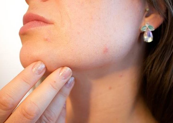 How to get rid of skin red spots
