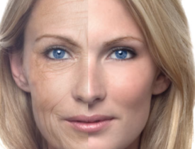 How to Reduce Wrinkles and Look Younger