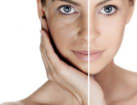 remove-acne-black-spots-dark-spots