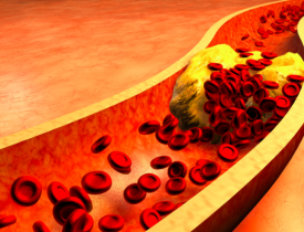 10 Symptoms Of High Cholesterol That You Shouldn't Ignore