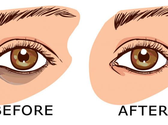 7 Remedies How To Remove Under Eye Dark Circles