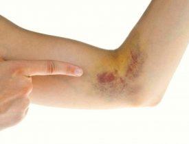 How Тo Get Rid Оf Bruises Naturally